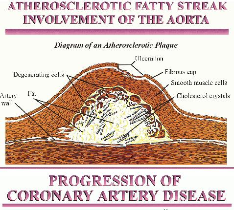 image of fatty streak in artery that continues and progresses into full blow heart disease in the elderly