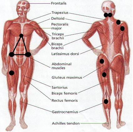 Common Myofascial Trigger Points