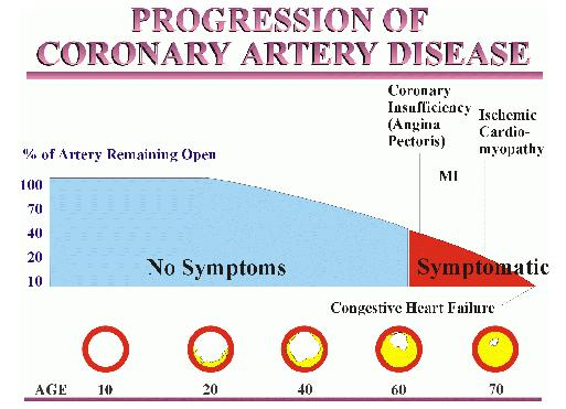 Heart disease progression can be prevented and reversed in the elderly through lifestyle changes